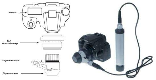 фотодерматоскоп